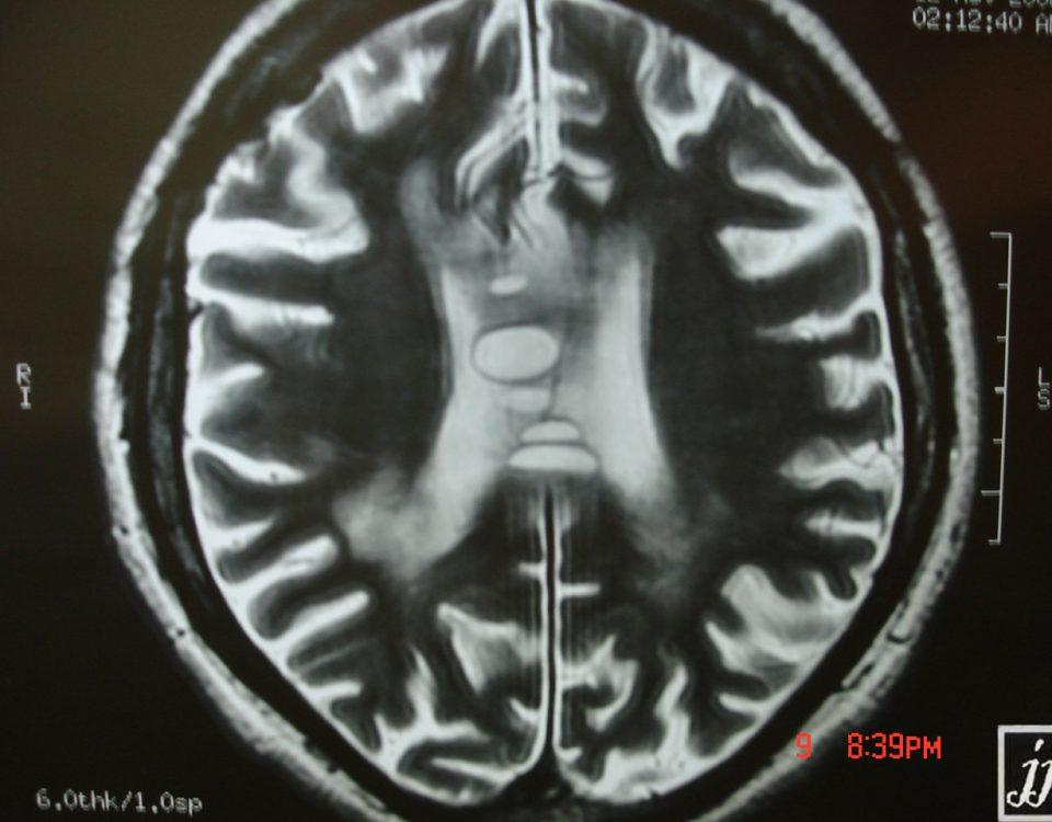 Brain  Corpus Callosum Surgery (7)