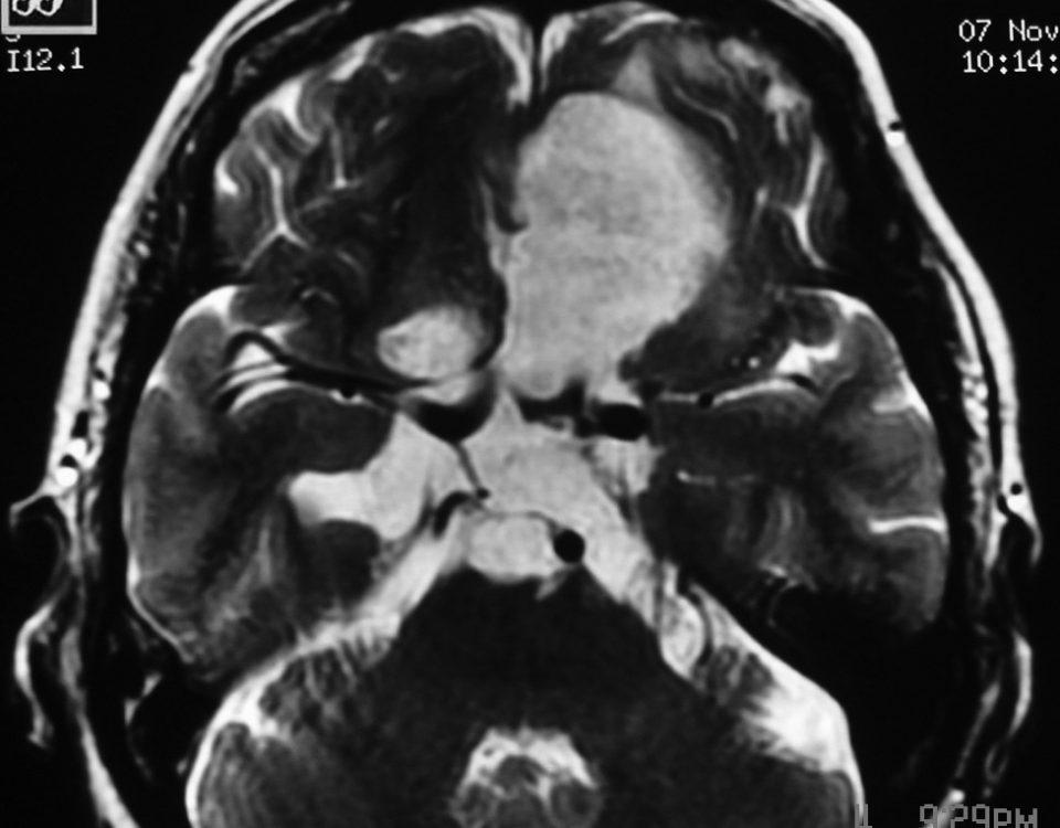 ENT  Epidermoid Tumor (6)