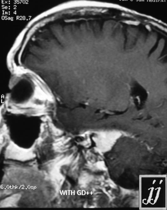 ENT  Right Vestibular Schwannoma (7)