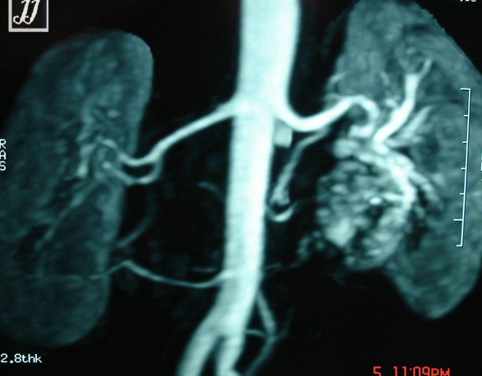 Abdomen  Left Kidney Vascular Anomaly (12)
