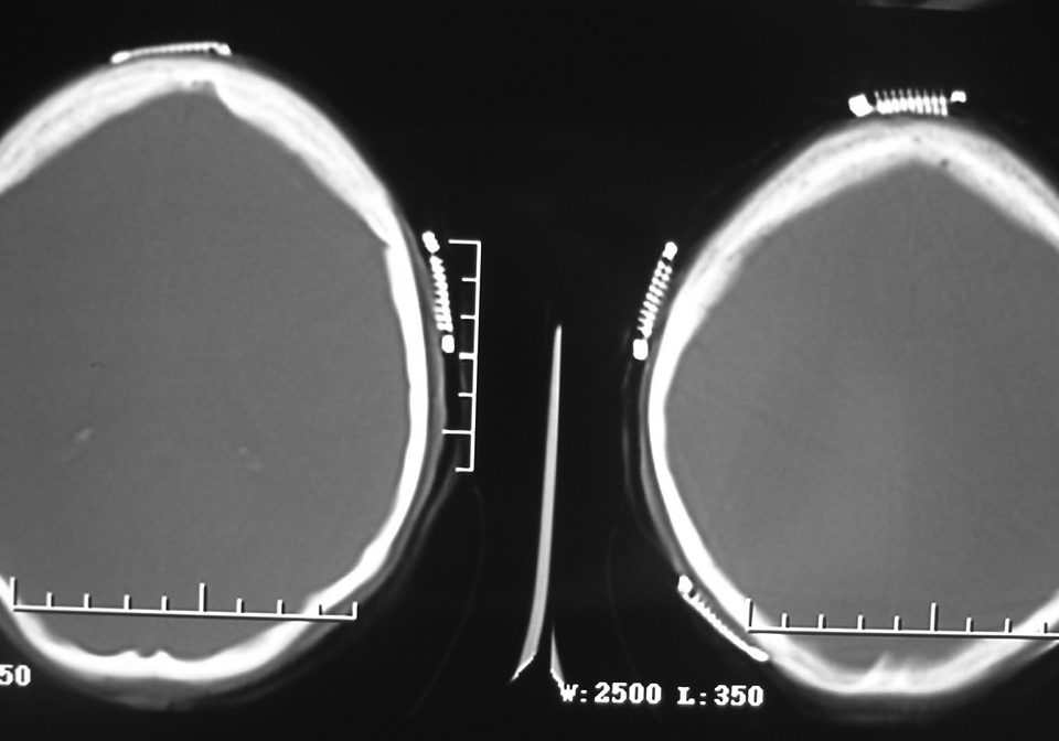 Brain  Beam Hardening Artifact Bi Stereotactic Devices (3)