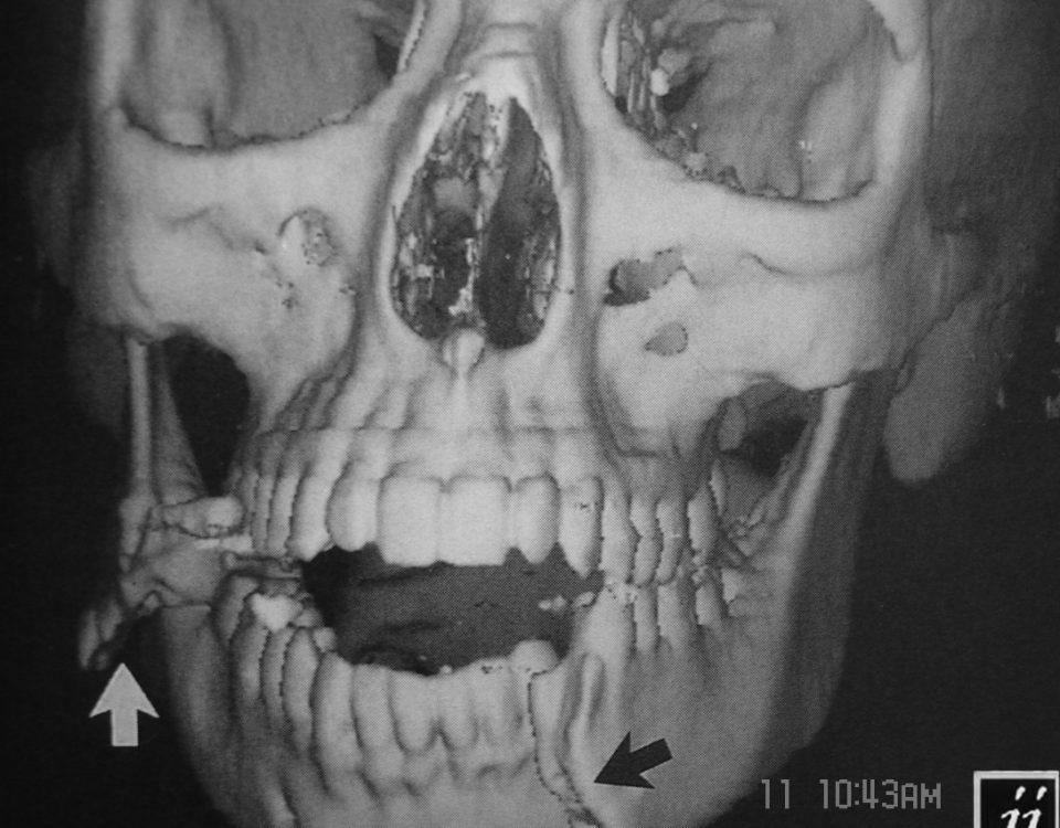 ENT  3D Of Facial Mandibular Fractures (2)