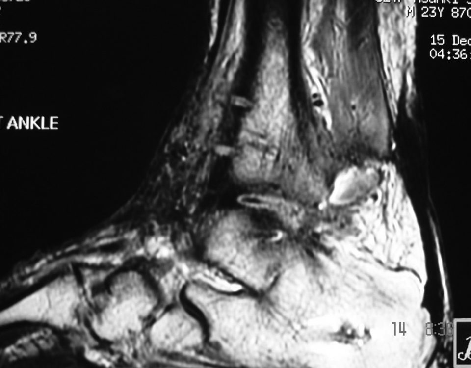 MSK  Ankle Ostial Pits And Tumoral Condition (2)