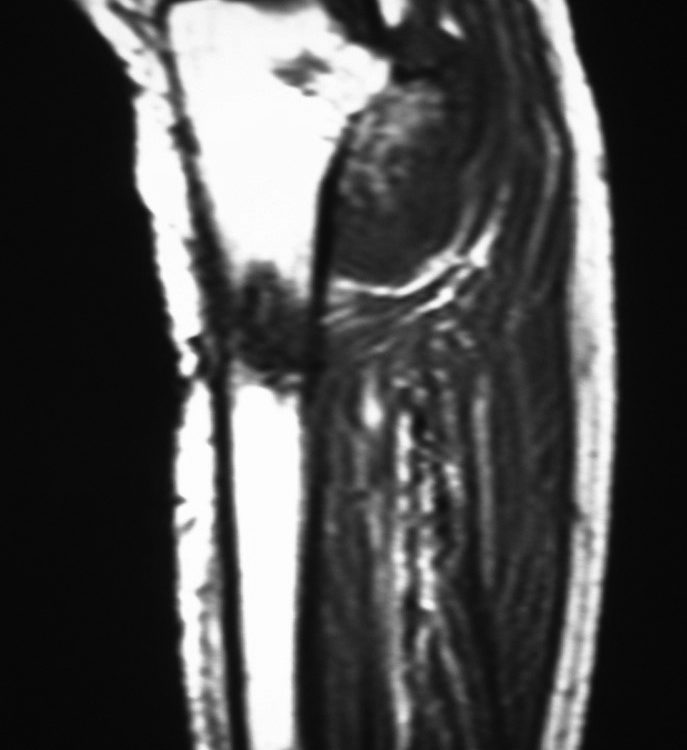 MSK  Tibia Osteosarcoma Above Exostosis (5)