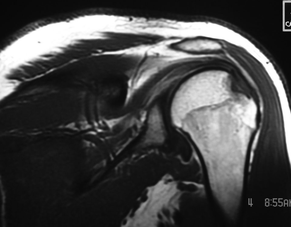 MSK  Hill Sachs Defect And Bone Bruising Of Humeral Head And Greater Tuberosity (2)