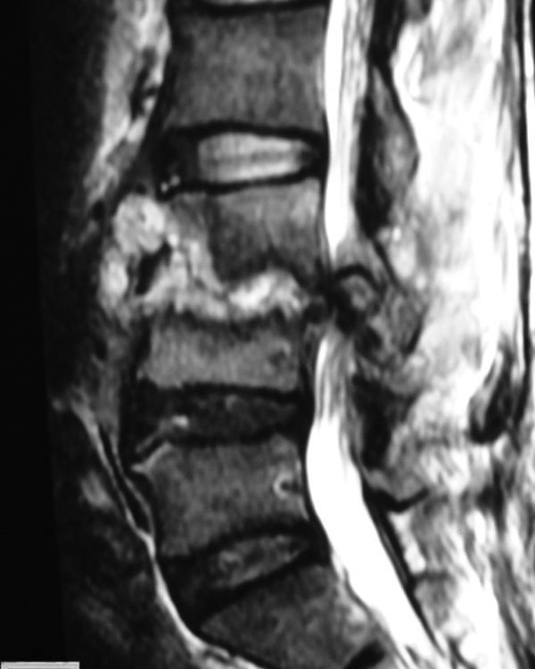 Spine  Tuberculosis (3)