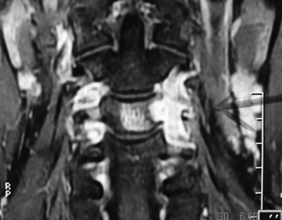 Spine  A Process Around Vertebral Artery (6)