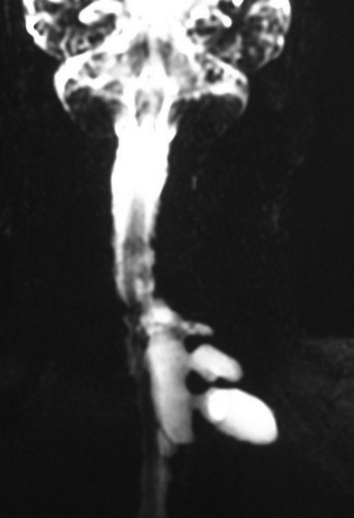 Spine  Foraminal Tumor (8)