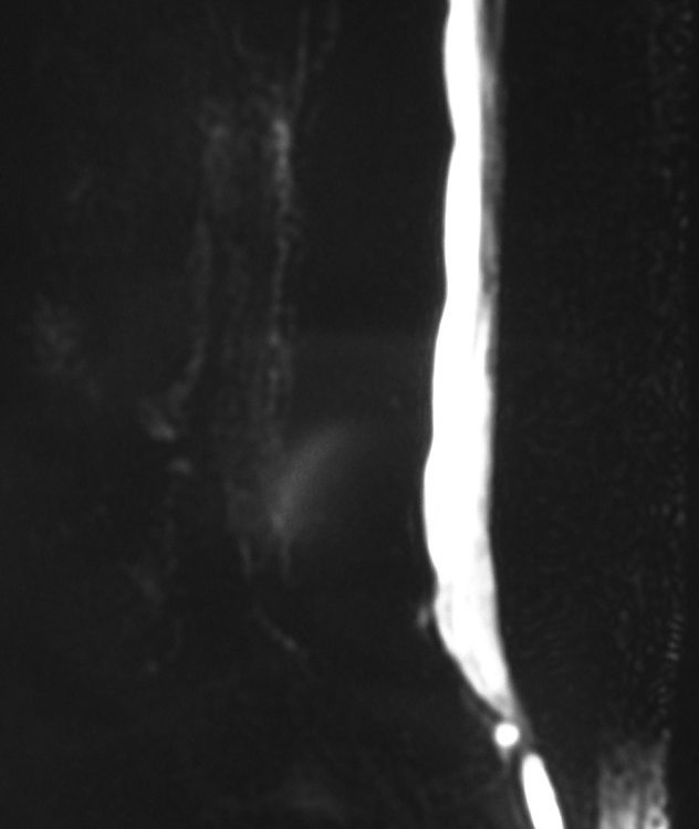 Spine  Lateral Meningocele As Variant (1)