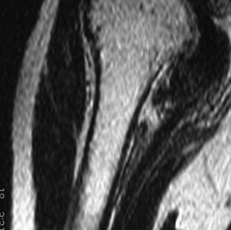 Spine  Multiple Myeloma (11)