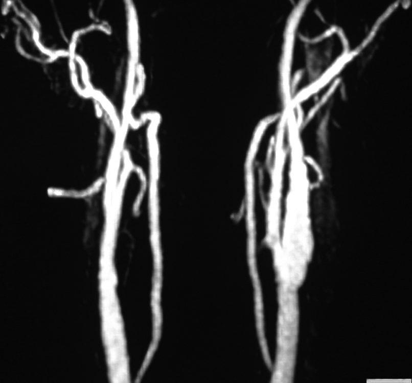 Vascular  Anatomy (2)