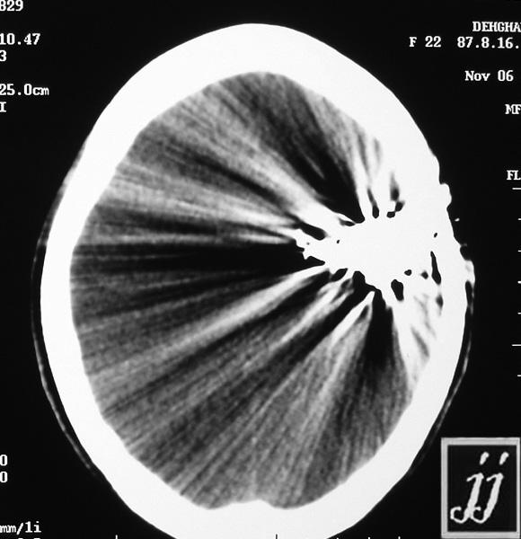 Vascular  Brain AVM (3)