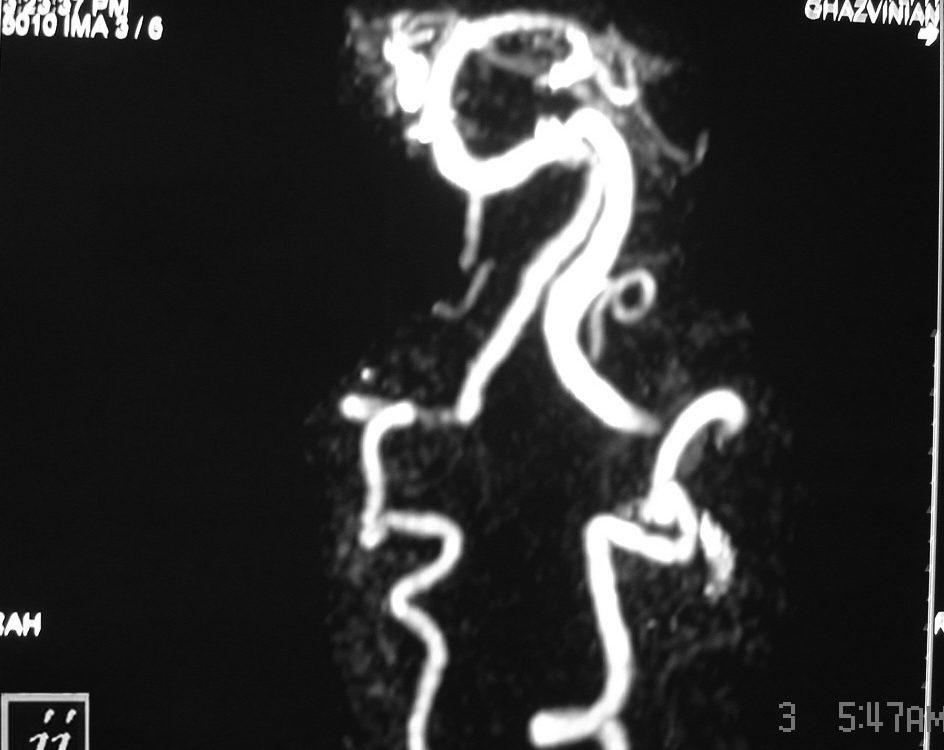Vascular  Dominant Left Vertebral Artery (3)