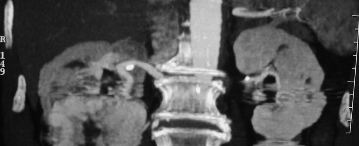 Abdomen  Right Kidney Tumor (3)
