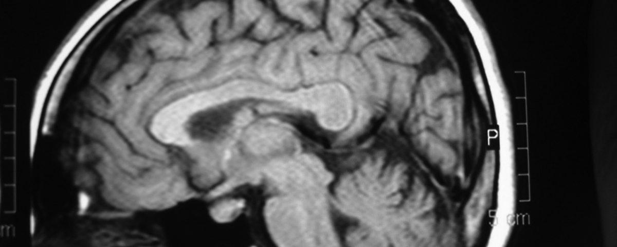 Brain  Thick Corpus Callosum Variant (10)