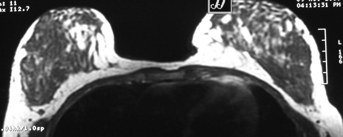Brain  Cerebellar Atrophy (15)
