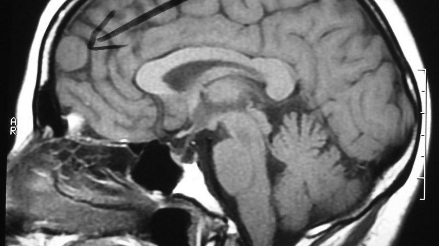 Brain  Frontal Meningioma (4)