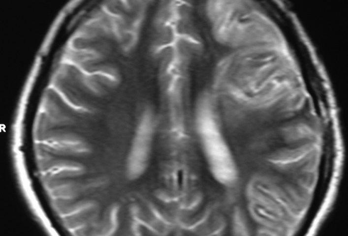 ENT  Sphenoidal Sinus Mucocele Or Petechial Hemorrhage In Brain, Left Temporal Bone Fracture (6)