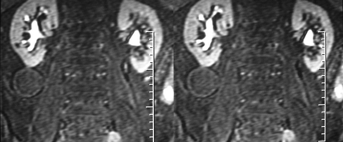 Abdomen  MRU Calyceal Cyst (6)