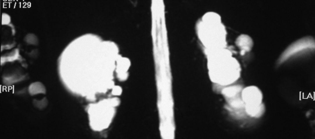 Abdomen  Multiple Renal Cyst (2)