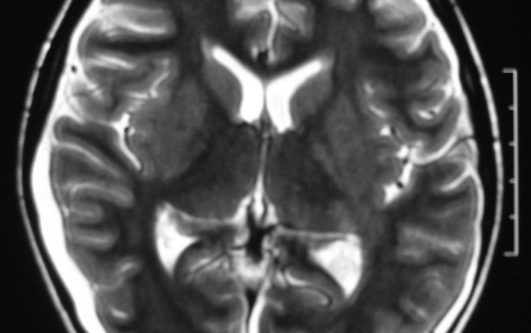 Brain  Bilateral Subdural Hygroma (1)