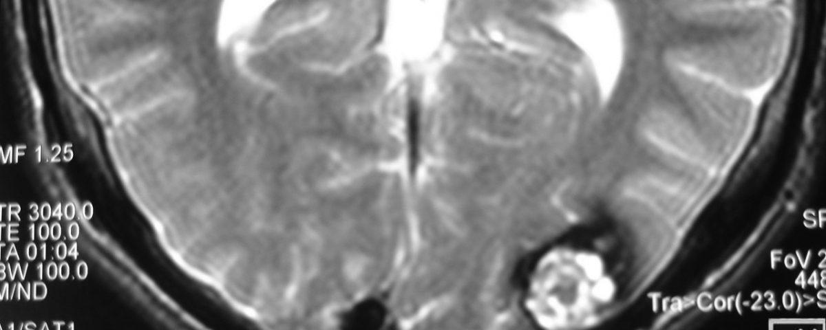 Brain  Cavernous Hemangioma Of Left Occipital Lobe (3)