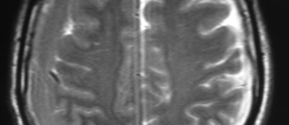Brain  Bi Lateral Subdural Hematoma (2)
