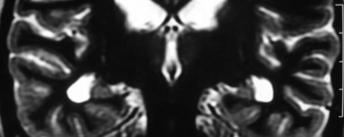 Brain  Hippocampus Atrophy (3)