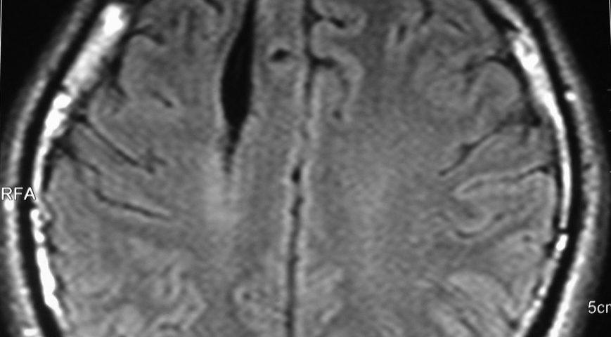 Brain  Interacerebral Hematoma In Shrinkage (4)