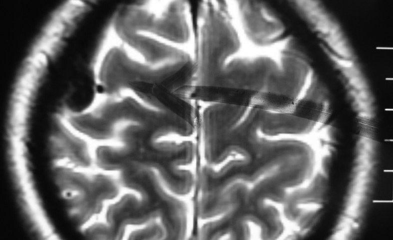 Brain  Meningioma (3)