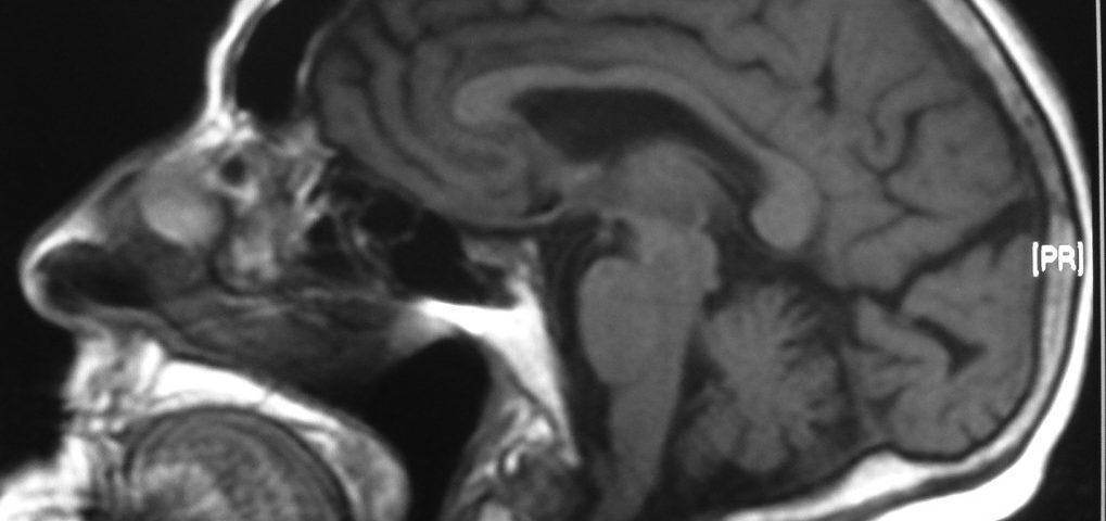 Brain  Micro Cephalic
