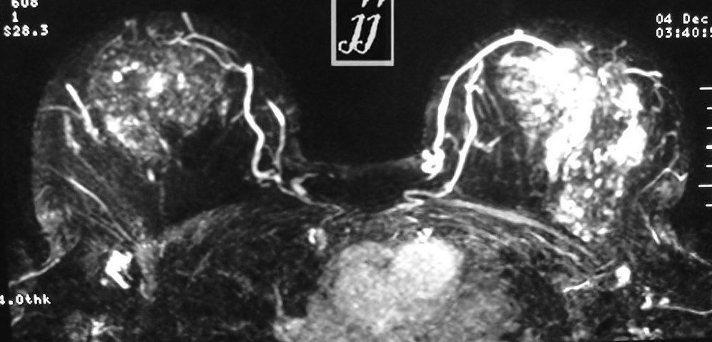 Breast  Left Side Mastitis (6)