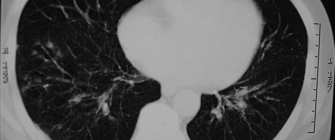 Chest  Chest Metastasis Disease (3)