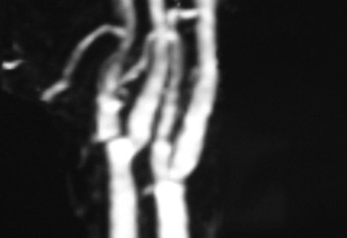 ENT  Normal Neck MRA (2)