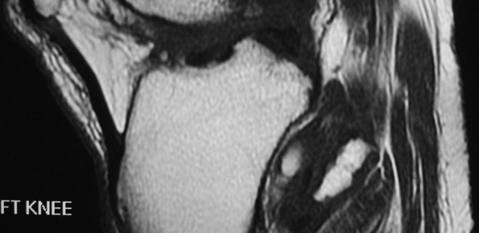 MSK  Loose Bodies In Tibio Fibular Recess (9)