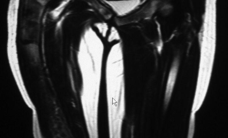 MSK  Right Femur Fibrous Dysplasia (5)