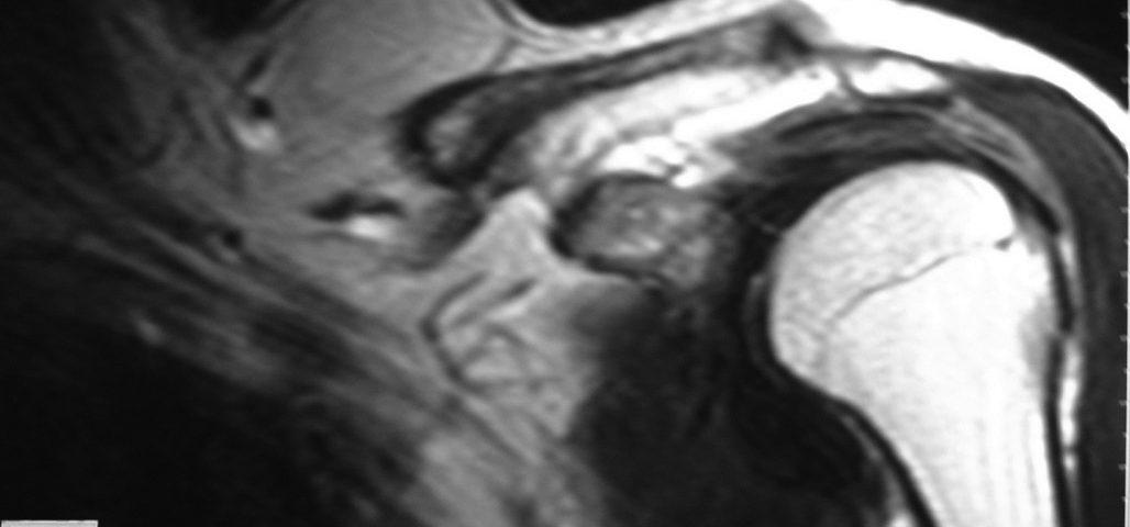 MSK  Supra Clavicular Mass (1)