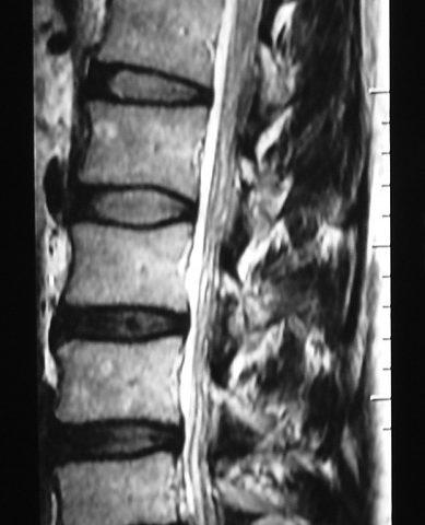Spine  Lumbar Disc Bulging (2)