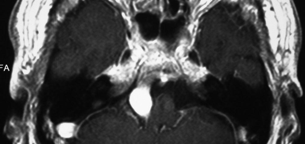 Vascular  Right Vertebral Aneurism (4)