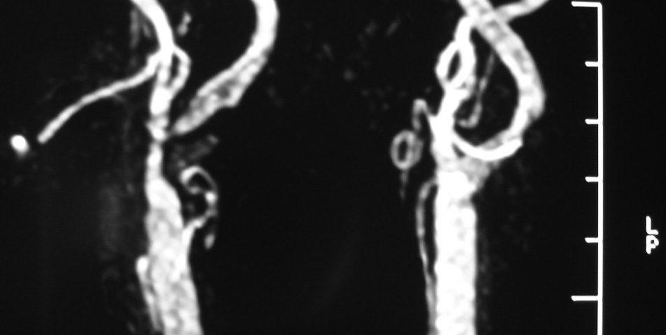 Vascular  Narrow Origin Of Right Internal Carotid Artery (2)