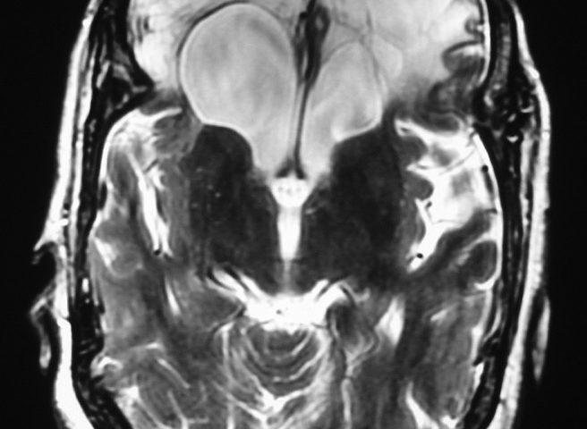 Brain  Large Empty Sellae And Frontal Malatya (3)
